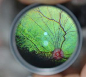 normal dog retina, normal dog fundus, PRA (progressive retinal atrophy) in dogs