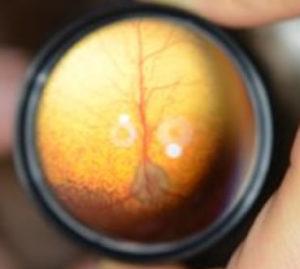 PRA (progressive retinal atrophy) in dogs,